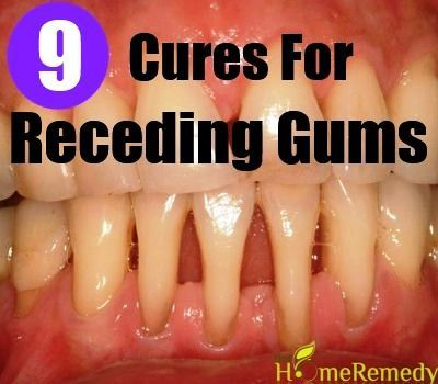 Why Gums Recede Natural Treatments