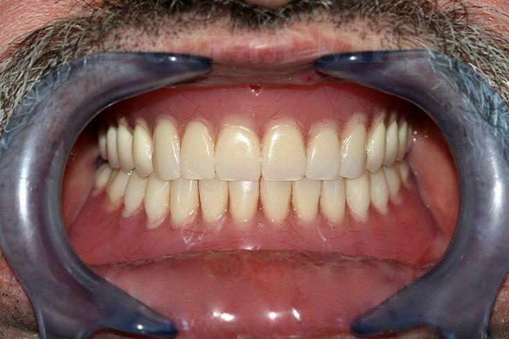 полный съемный протез фото   Стоматология