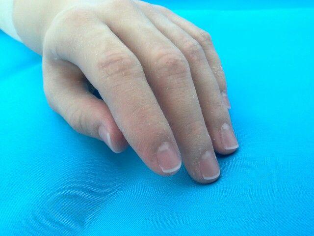Protesis de mano
