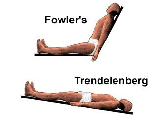 high fowler's position - Google Search