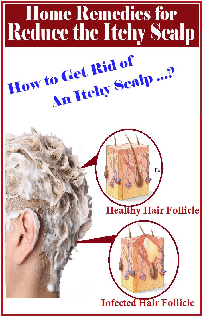 Home Remedies For Itchy Scalp Hair Remedies Thick Hair Remedies Itchy Scalp