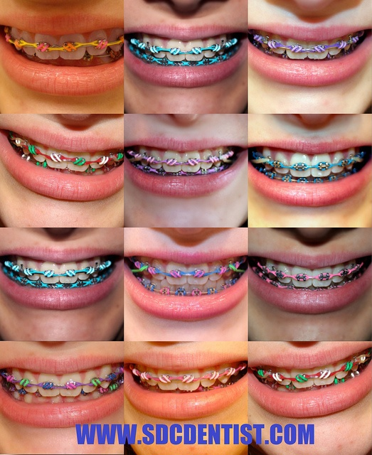 Color braces by Braces Dentist  watch this clip : https://www.youtube.com/watch?v=4keYqFu10Sk
