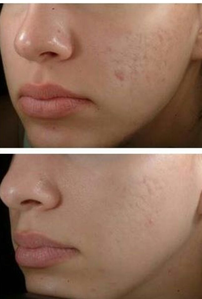 25 Best Ideas About Overnight Acne Cure On Pinterest