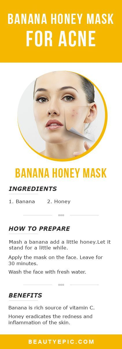 Face Mask for Acne: Top 10+ Homemade Acne Face Mask Recipes