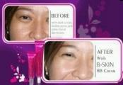 B•SKIN adalah produk revolusioner untuk para wanita dengan paduan sempurna kosmetik dan perawatan kulit. Perpaduan sempurnanya mampu menyembuhkan, memperlambat terjadinya kerutan, memutihkan, sebagai tabir surya, sebagai alas bedak, penyamar noda, dan pelembab. Hebatnya, semua fungsi itu didapat dalam satu kemasan!
