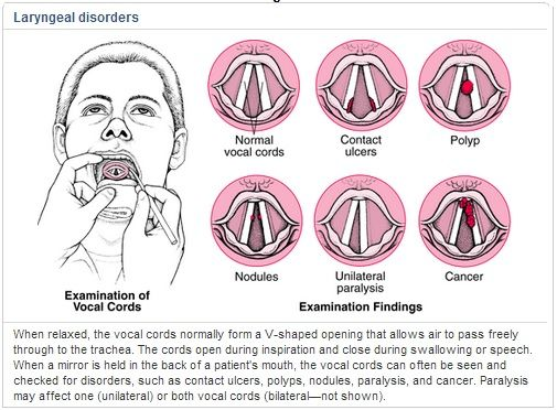 Laryngeal disorders- visuals for contact ulcers, polyps, cancer, unilateral vocal fold paralysis, and nodules. Save