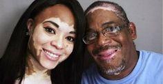 Esta simples receita vai livrar você de vez do vitiligo! (Testada e aprovada!)   Cura pela Natureza