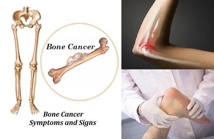 17 best images about cancer on pinterest the journal bone cancer and lymph nodes. Black Bedroom Furniture Sets. Home Design Ideas