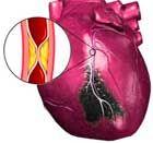 инфаркт миокарда может служит тромбофлебиту нижних конечностей