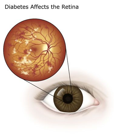 Have you noticed the early signs of diabetic retinopathy? Have you ever been diagnosed with diabetes? Diabetes can harm your eyes. It damages the blood vessels in your retina, leading to blurring of vision. If you are seeing blurry patches in the field of sight, get your eyes examined