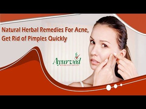 You can find more herbal remedies for acne at http://www.ayurvedresearch.com/herbal-acne-treatment.htm