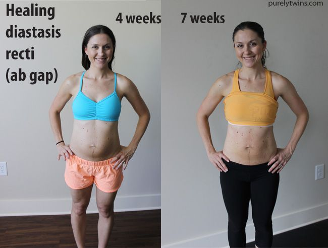 98 Best Purely Twins Diastasis Post Partum Workouts Images