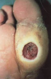 Diabetic Foot Ulcers: Prevention, Diagnosis and Classification – March 15, 1998 – American Family PhysicianMe