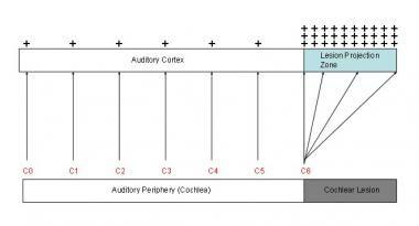Tinnitus model. Two phenomena in auditory cortex a. Menieres Disease