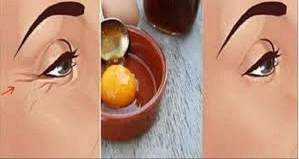 Ne habozz! Használd te is ezt a csupán 3 egyszerű összetevőből álló házi készítményt. Nem kellenek drága krémek, felejtsd el a bonyolult kozmetikai készítményeket. Álmaid arca fog visszaköszönni rád a tükörben, ha ezt 100%-ban természetes és könnyen elkészíthető maszkot használod. Olcsó, hatékony és természetes! 3 összetevője: méz tojás tejpor Tisztító maszk: Keverj el 1 egész tojást 1 evőkanál mézzel és 1 evőkanál tejporral. Keverd addig, amíg egységes homogén masszát nem kapsz. Ez...