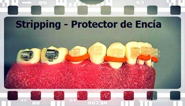 Ortodoncia: Stripping, hilo elástico para proteger las encías | Odonto-TV