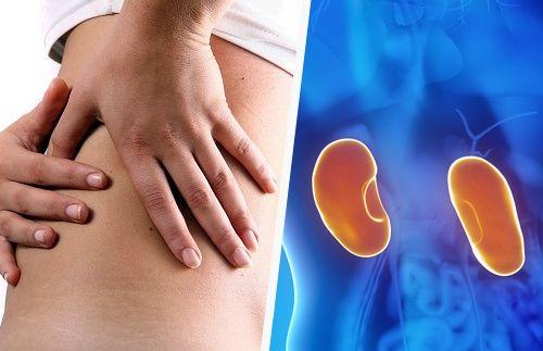 Sintomas de uma infecção nos rins em mulheres