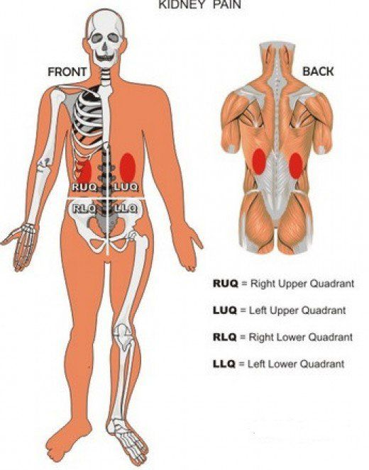 All about Kidney Pain: Location, Diagnosis and Treatment