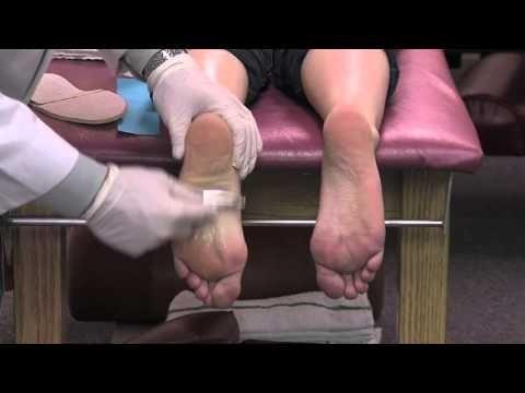 Odstraňte bolesti chodidla a paty technikou známého sportovního lékaře DeFabia