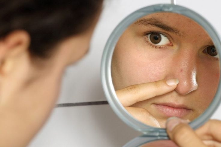 What are blackheads and what causes blackheads to form?