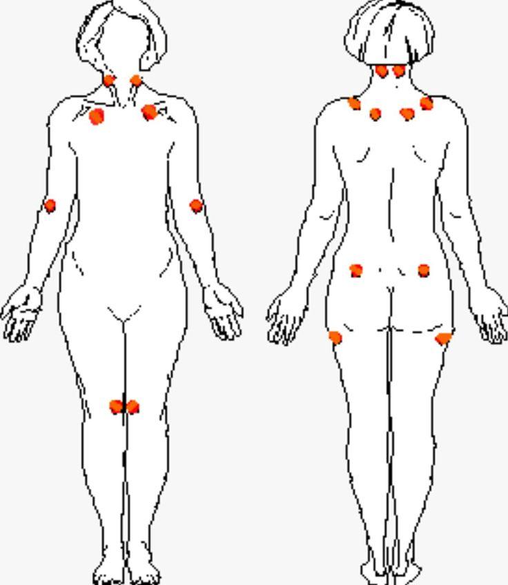 Fibromyalgie massage.  Chronische pijnlijke gewrichten Slacht slapen Vermoeidheid Stemmingswisselingen  We kunnen  er samen aan werken om de pijn te verlichten : http://www.wellnesssalonsodaliet.nl/fibromyalgie/  #Artrose #Fibromyalgie #Jicht #Reumatoïde #artritis #Ziekte van #Bechterew #Tietze #Pijnverlichtend #vermoeidheid #reumatischeklachten #stemmingswisselingen #ontspannen #doorbloeding #stofwisseling #ede #krachtgevoel #ademhaling #Veluwe #Gelderland #GelderseStreken…