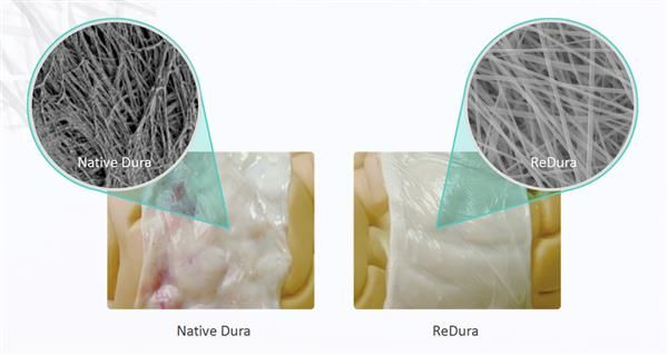 Chinese Company Introduces Bioprinted Dura Mater for Use in Brain Surgery http://3dprint.com/83038/bioprint-dura-mater/