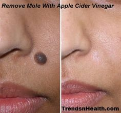 Apple Cider Vinegar Mole Removal Home Remedy | Trends and Health