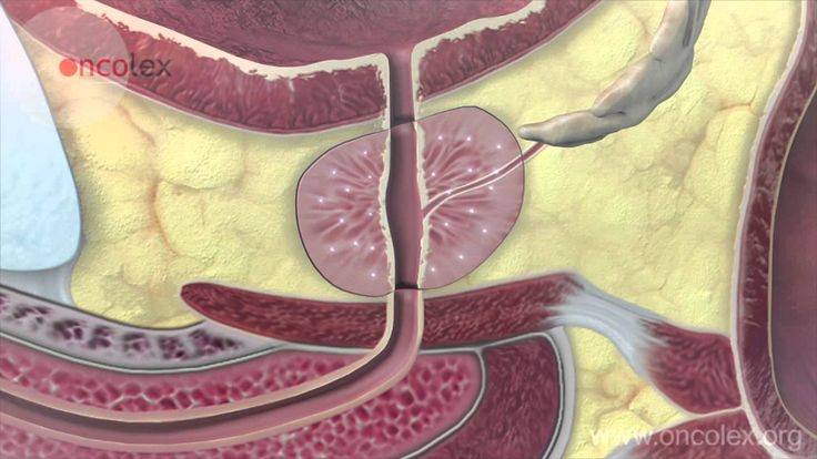 Prostate cancer: Essential facts - this is very informative -