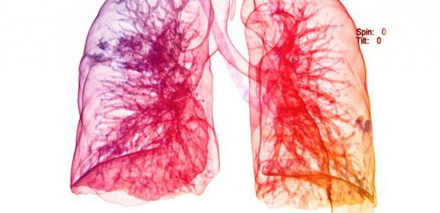 bronconeumonia lobar - Buscar con Google