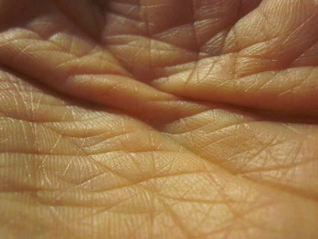 Skin macro - skin makes for great photography