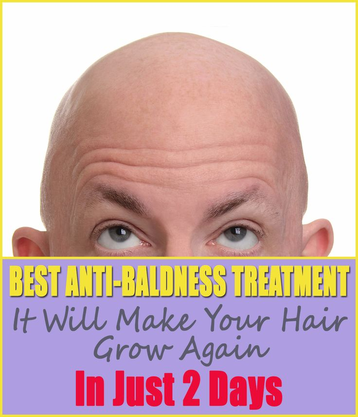 Both men and ladies experience the ill effects of this condition – male pattern baldness. Be that as it may, the question remains – what causes balding?