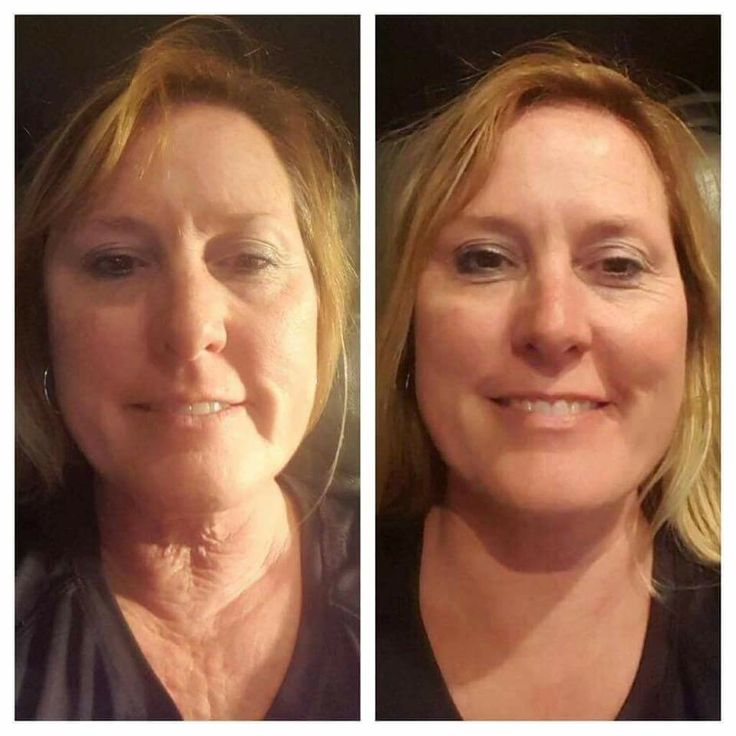 """Wow!!! This is one of our most recent testimonials from a new business partner out of Kansas City. Gina was skeptical but said she would use the products """"religiously"""" to see if they worked.  Gina said, """"If this works on my neck then I'm going to tell everybody about this!""""  So she purchased the 5 pack promo and for 5 days once a night she has been using them. Needless to say, the results speak for themselves. Gina is over the MOON! #creatingbeautifullives #nucerity #nuceritybeforeandafter"""