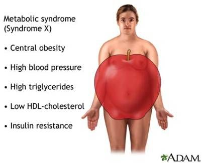 Signs and symptoms of Metabolic Syndrome