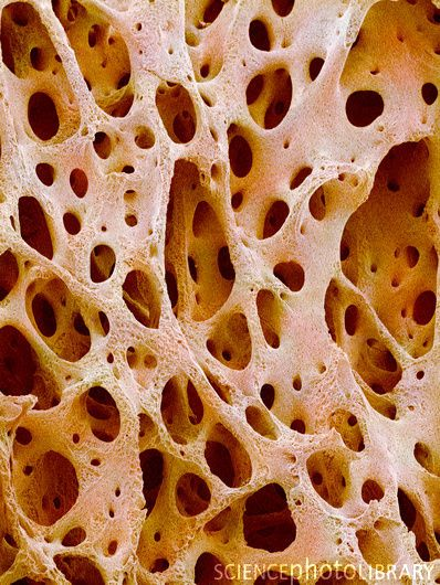 Bone tissue. Coloured scanning electron micrograph (SEM) of cancellous (spongy) bone.