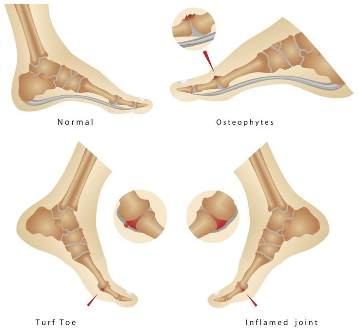 Do you know what Turf Toe is? You need to read this article! http://healingfeet.com/about-turf-toe-treatment
