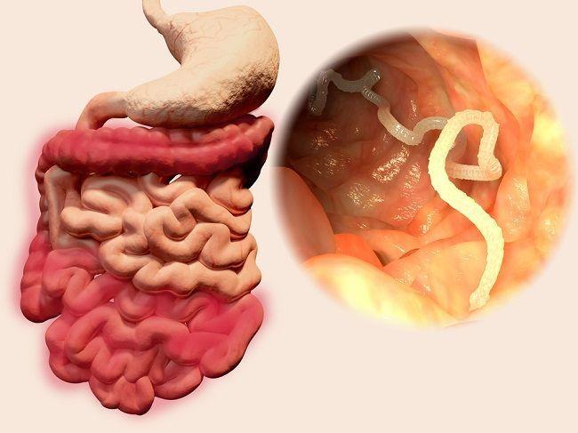 Parazity: 8 potravín, vďaka ktorým sa ich zbavíte