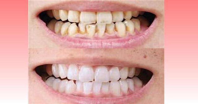 【超裏技】あるモノを使って歯を磨くと、一週間で歯が光り輝くぞ