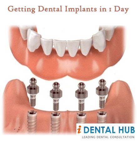As the latest methodology and the advances in technology become better, dentists and patients are happy to use this technique. This is because it provides them with a quicker way to get their dental work done.