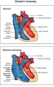 Резултат с изображение за ebstein anomaly