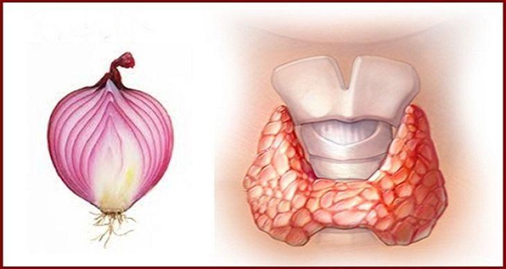 Este increíble tratamiento contra la tiroides que es a base de cebolla morada te será de gran ayuda. ¡CONÓCELO!