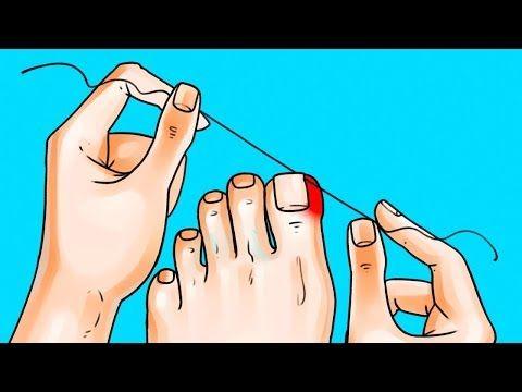 6 Großartige Tipps um Deine Füße Fabelhaft Aussehen zu Lassen – Gesundheit