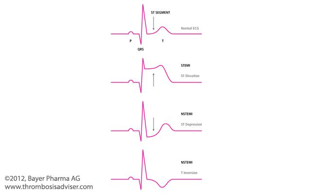 Understanding differences between stemi and nstemi | allnurses