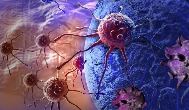 Tohle je 6nejčastějších druhů rakoviny - Vitalia.cz