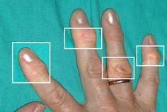 Naturliga behandlingar för artrit - Steg för Hälsa