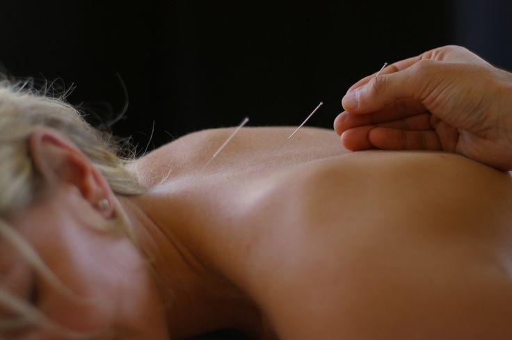 Migräne oft ein Ventil für unterdrückte Spannungen-Akupunktur hilft gegen akute Schmerzen – Chinesische Kräuter langfristig