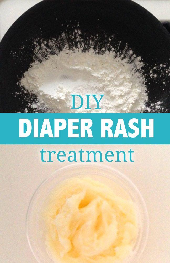 A DIY Diaper Rash Treatment That Really Works