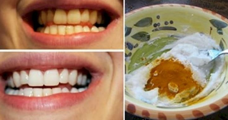 Get a healthier and happier smile naturally!