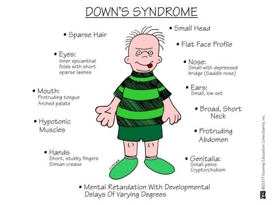 the clinical description of the medical condition down syndrome Williams syndrome (ws) is a genetic condition that is present at birth and can affect anyone it is characterized by medical problems, including cardiovascular disease, developmental delays, and learning challenges.