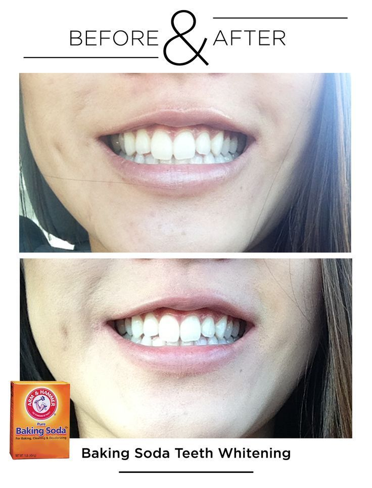 Before After Teeth Whitening With Baking Soda