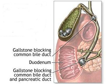Biliary obstructions are those things which block the bile duct causing bile fluid (otherwise known as gall) to back up into the liver. The results of such blockages may lead to dietary anemia, jaundice, or biliary colic (a condition characterized be severe abdominal pain, profuse sweating, and vomiting).More:[ http://www.willwellness.com/1987/causes-and-treatments-of-bile-duct-stones/]